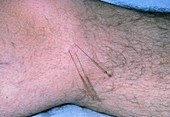 Acupuncture needles in a patient's knee