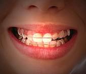 Removable orthodontic braces