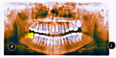 Abnormal wisdom tooth,X-ray