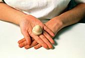 Contraception: a cervical cap