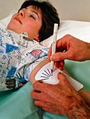 Norplant contraceptive implant stencil