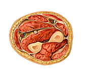 Transverse section of forearm, artwork