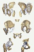 Pelvis bones and ligaments