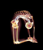 Backward bend,X-ray artwork