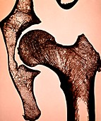 Hip joint,light micrograph