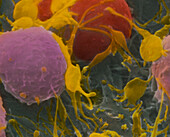 SEM of activated platelets in human blood