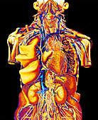 Colour artwork of abdominal & thoracic nerves