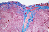 Palatine tonsil,light micrograph