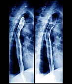 Oesophagus,X-ray