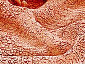 Surface of amnion,SEM