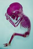 X-ray of aborted foetus