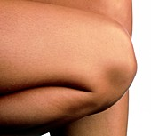 Side view of the knee of a woman
