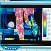 Sports trainer,thermogram