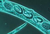 LM of the nematode worm,Caenorhabditis elegans