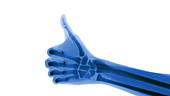 Blue X-ray thumbs up