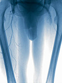 Cross-femoral bypass, angiography