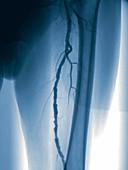 Narrowed leg arteries, angiography