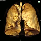 Lungs, 3D CT scan