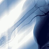 Haemodialysis, angiography