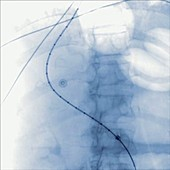 Digestive angiography
