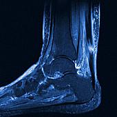 Torn Achilles tendon, MRI scan