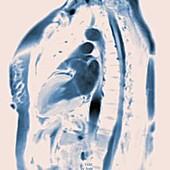 Beating heart, MRI scan