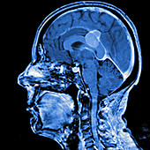 Brain membrane tumour, MRI sequence