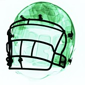 X-Ray of a football helmet