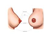 Postpartum breasts,illustration