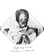 Leprosy patient,Philippines,1899