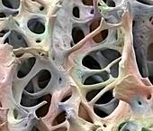Bone tissue,SEM