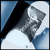 'Cervical Spine,X-Ray'