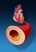 Heart and Artery