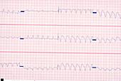 Ventricular Tachycardia EKG