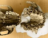 Paranthropus and Human Palates