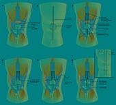 Quadriceps Tendon Repair