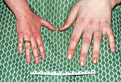Normal and Acromegalous Hands