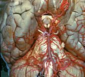Arteries at Base of Brain