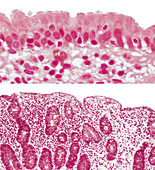Normal and Abnormal Jejunum