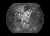Polypoidal Choroidal Vasculopathy