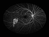 Window Defect,Ophthalmic Medicine