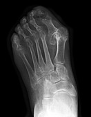 Foot X-ray Showing Bunions