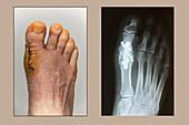 Foot 20 Days Post-Arthrodesis Op