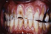 Sever Dental Erosion