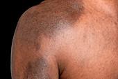 Post-inflammatory pigmentation in eczema
