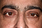 Eye squint in VI nerve palsy