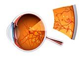 Eye damage due to diabetes,illustration
