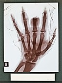 Finger injury X-ray,early 20th century