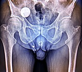 Incontinence implant,X-ray