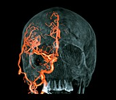 Brain haemorrhage,3D CT scan